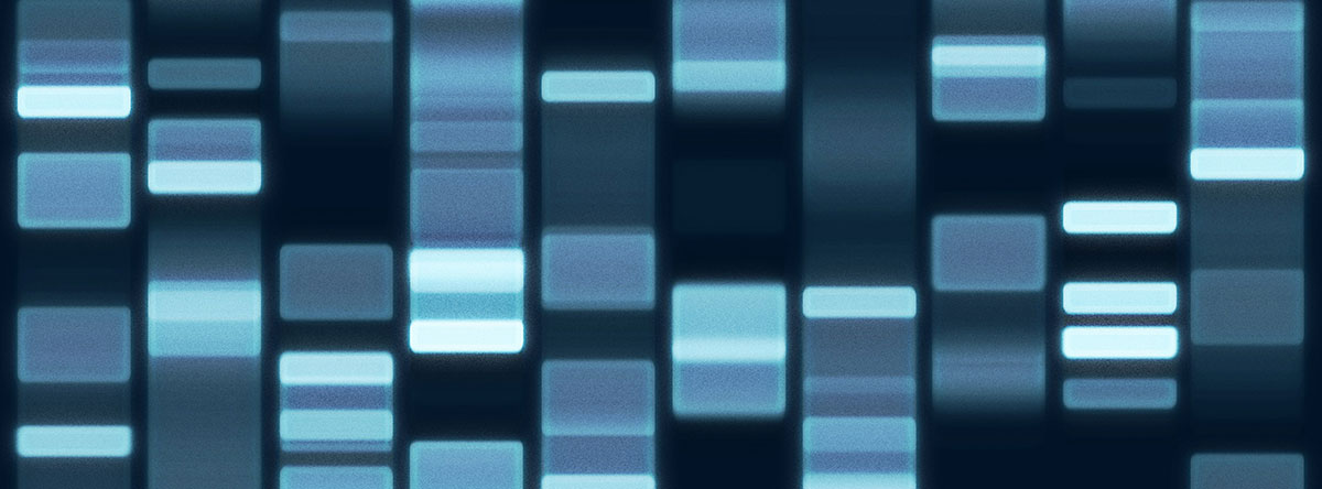A DNA Gel electrophoresis